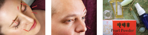 Cosmetic & Facial Rejuvenation Acupuncture in Los Angeles