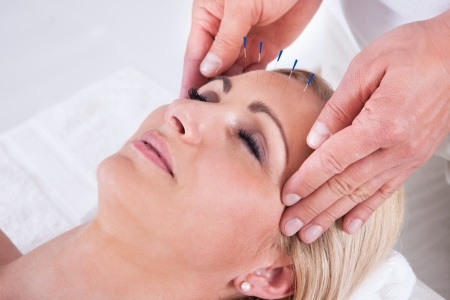 Information on Acupuncture Sessions