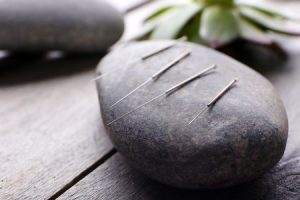 Things to keep in mind before your acupuncture appointment